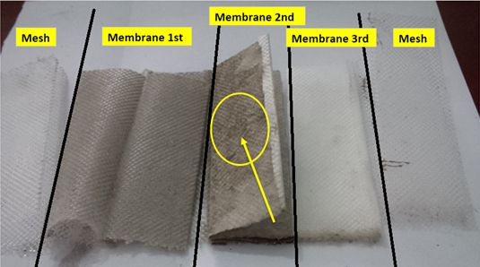 5 layers membrane structure